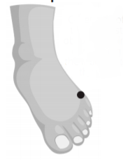 diagram of foot showing meridian point on the outer side